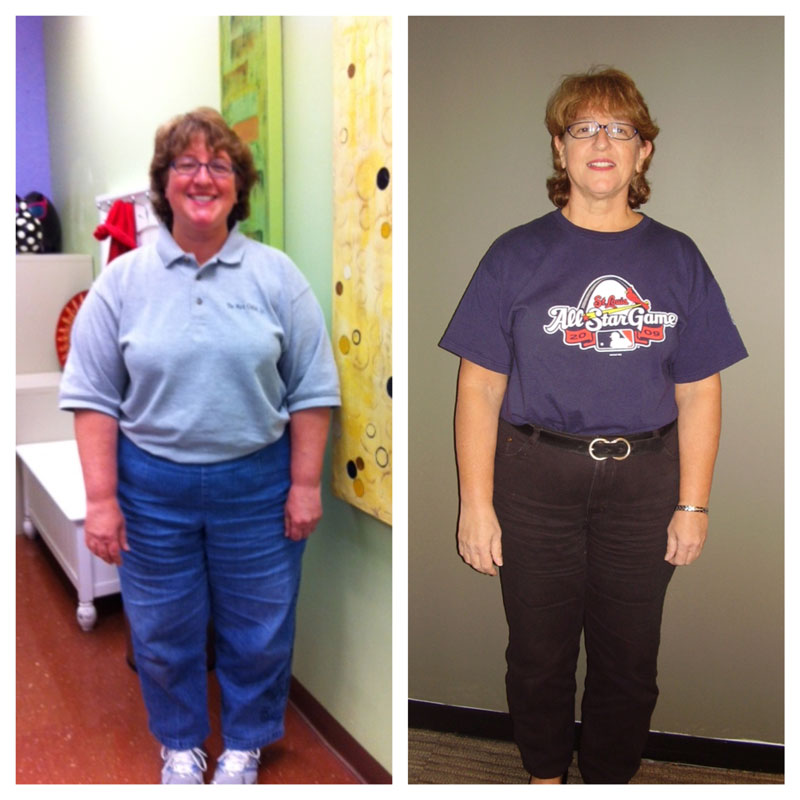 kathy-beforeafteroct2013